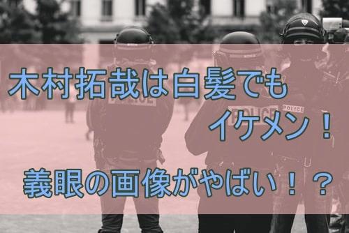 木村 拓哉 義眼